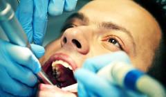 Proč se sportovcům kazí zuby?