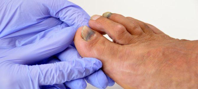 Odznak nasazení: Co dělat s černými nehty?